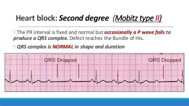 ECG, step by step appr...