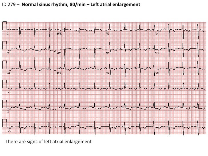 Ecg #7  Id 279  Rvh. Quarry Signs. Uranus Signs Of Stroke. Cerebrovascular Signs Of Stroke. Burmese Signs Of Stroke. Washroom Signs. Map Signs. Third Trimester Signs Of Stroke. Lung Ultrasound Signs