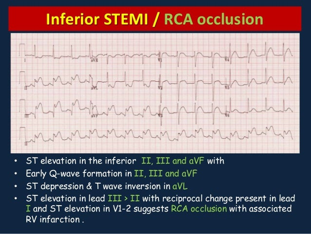 Myocardial Ischemia an...Q Wave Formation