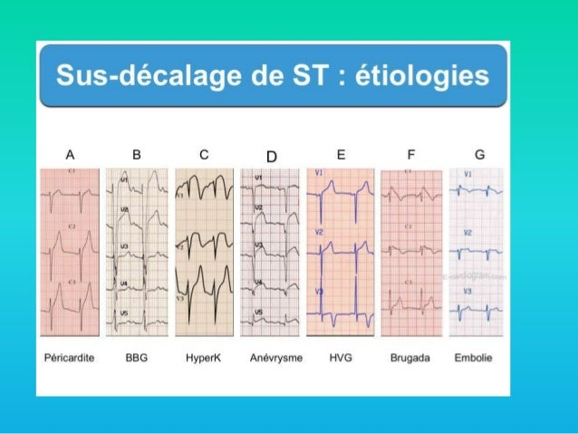 Formation acc l r e en ecg 2 me session for Syndrome miroir