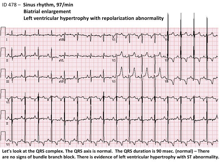 right ventricular hypertrophy ecg pdf