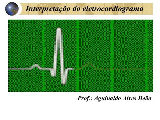 Interpretação do eletrocardiograma Prof.: Aguinaldo Alves Deão