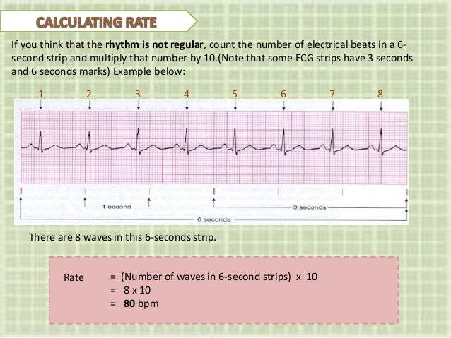 Ecg An Introduction