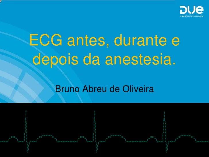 ECG antes, durante edepois da anestesia.   Bruno Abreu de Oliveira
