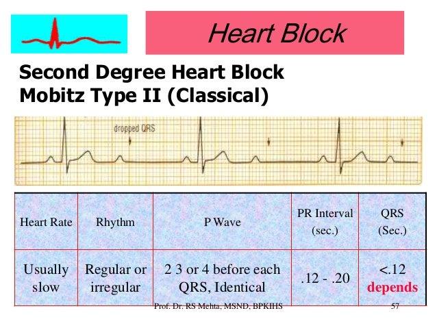 ... 53. Heart Block Second ...