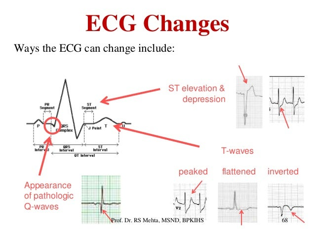 ecg changes ways the ecg can change include appearance of