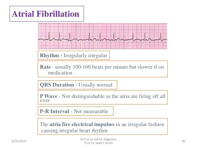 Ecg as an aid for diagnoses