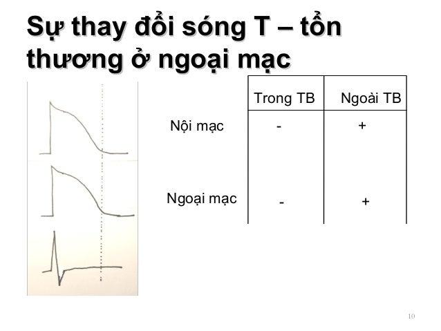 Sự thay đổi sóng T – tổnSự thay đổi sóng T – tổn thương ở ngoại mạcthương ở ngoại mạc 10 Nội mạc Ngoại mạc Trong TB Ngoài ...