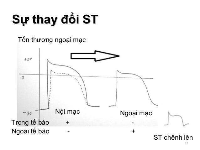 Sự thay đổi STSự thay đổi ST 12 + Ngoại mạc ST chênh lên Trong tế bào Nội mạc - -Ngoài tế bào + Tổn thương ngoại mạc