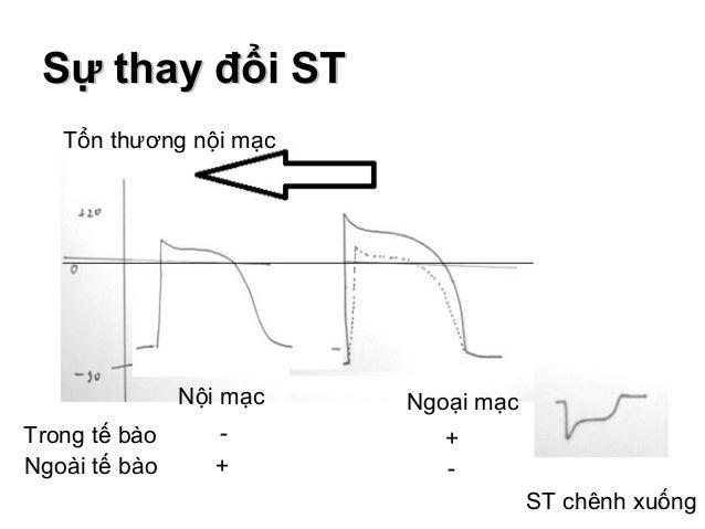 Sự thay đổi STSự thay đổi ST 13ST chênh xuống + Ngoại mạc Trong tế bào Nội mạc - - Ngoài tế bào + Tổn thương nội mạc