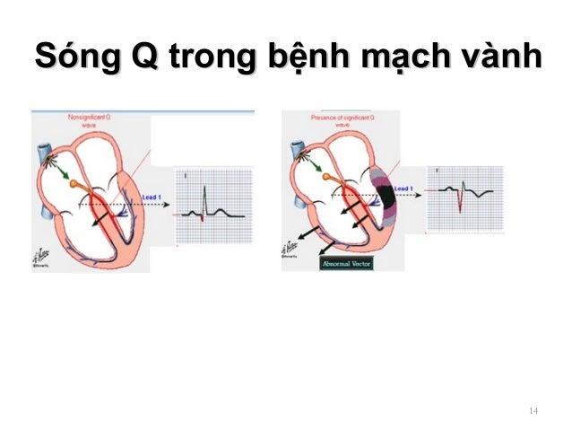Sóng Q trong bệnh mạch vànhSóng Q trong bệnh mạch vành 14