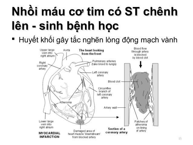 Nhồi máu cơ tim có ST chênhNhồi máu cơ tim có ST chênh lên - sinh bệnh họclên - sinh bệnh học  Huyết khối gây tắc nghẽn l...