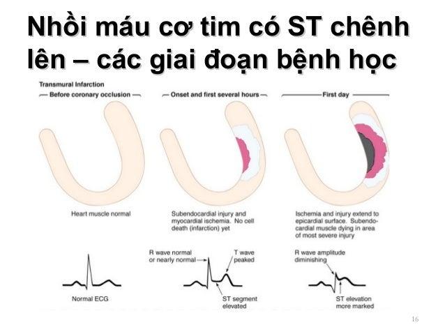 Nhồi máu cơ tim có ST chênhNhồi máu cơ tim có ST chênh lên – các giai đoạn bệnh họclên – các giai đoạn bệnh học 16