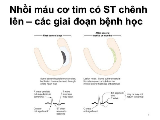 Nhồi máu cơ tim có ST chênhNhồi máu cơ tim có ST chênh lên – các giai đoạn bệnh họclên – các giai đoạn bệnh học 17