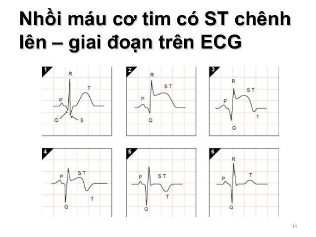Nhồi máu cơ tim có ST chênhNhồi máu cơ tim có ST chênh lên – giai đoạn trên ECGlên – giai đoạn trên ECG 19