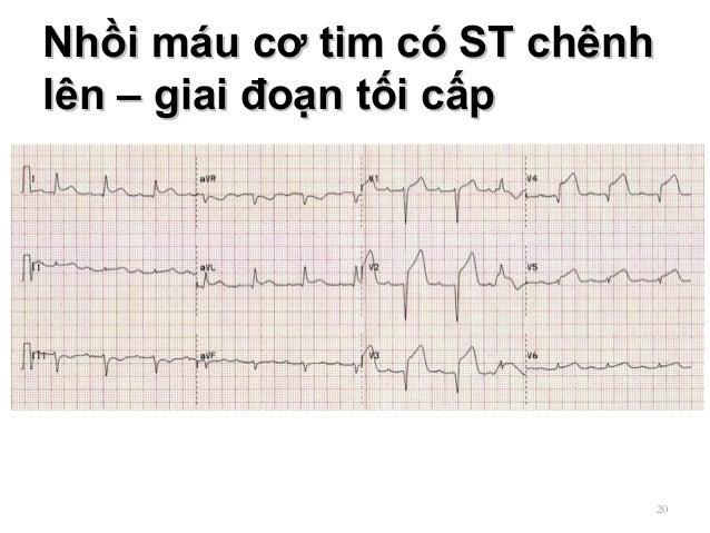Nhồi máu cơ tim có ST chênhNhồi máu cơ tim có ST chênh lên – giai đoạn tối cấplên – giai đoạn tối cấp 20