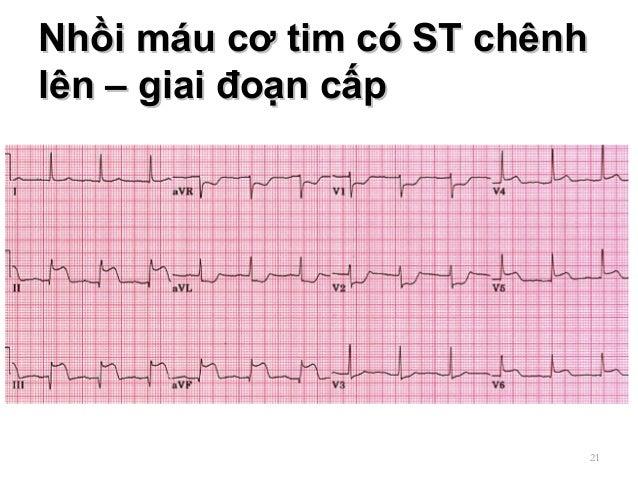 Nhồi máu cơ tim có ST chênhNhồi máu cơ tim có ST chênh lên – giai đoạn cấplên – giai đoạn cấp 21