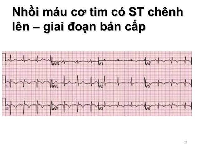 Nhồi máu cơ tim có ST chênhNhồi máu cơ tim có ST chênh lên – giai đoạn bán cấplên – giai đoạn bán cấp 22