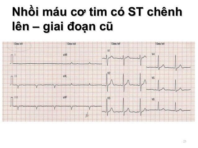 Nhồi máu cơ tim có ST chênhNhồi máu cơ tim có ST chênh lên – giai đoạn cũlên – giai đoạn cũ 23