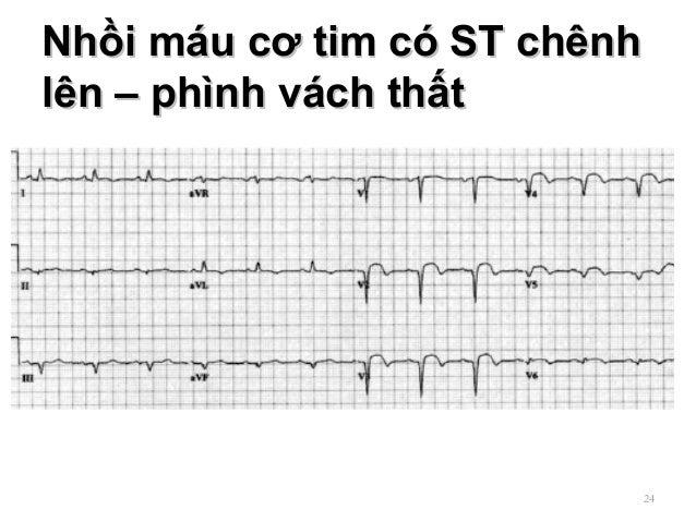 Nhồi máu cơ tim có ST chênhNhồi máu cơ tim có ST chênh lên – phình vách thấtlên – phình vách thất 24