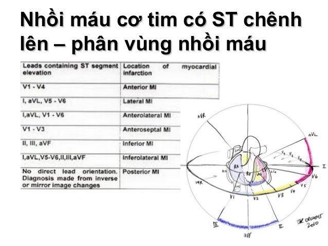 Nhồi máu cơ tim có ST chênhNhồi máu cơ tim có ST chênh lên – phân vùng nhồi máulên – phân vùng nhồi máu 25