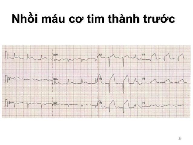 Nhồi máu cơ tim thành trướcNhồi máu cơ tim thành trước 26