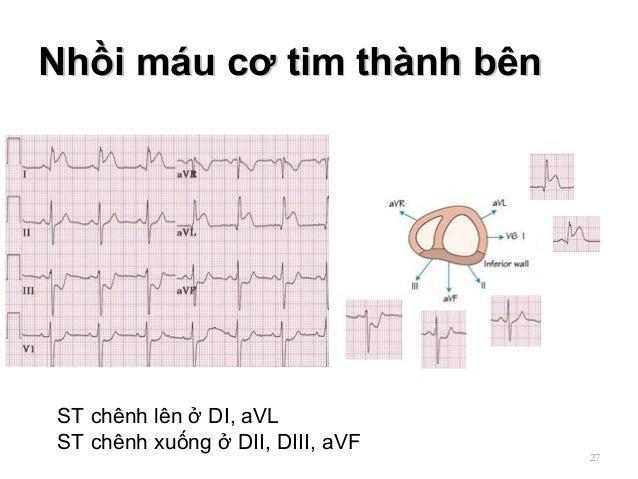 Nhồi máu cơ tim thành bênNhồi máu cơ tim thành bên 27 ST chênh lên ở DI, aVL ST chênh xuống ở DII, DIII, aVF
