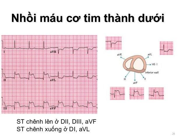 Nhồi máu cơ tim thành dướiNhồi máu cơ tim thành dưới 28 ST chênh lên ở DII, DIII, aVF ST chênh xuống ở DI, aVL