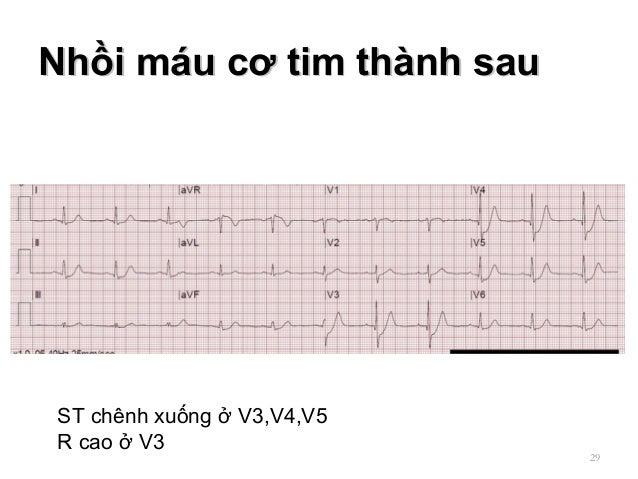 Nhồi máu cơ tim thành sauNhồi máu cơ tim thành sau 29 ST chênh xuống ở V3,V4,V5 R cao ở V3