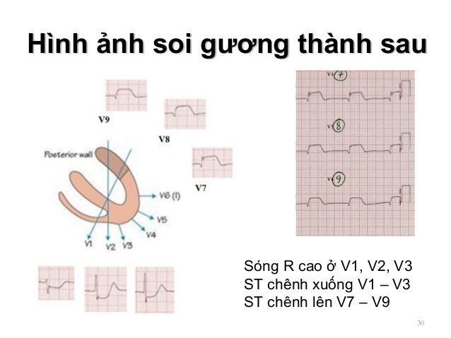 Hình ảnh soi gương thành sauHình ảnh soi gương thành sau 30 Sóng R cao ở V1, V2, V3 ST chênh xuống V1 – V3 ST chênh lên V7...