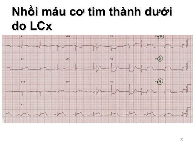 Nhồi máu cơ tim thành dướiNhồi máu cơ tim thành dưới do LCxdo LCx 32