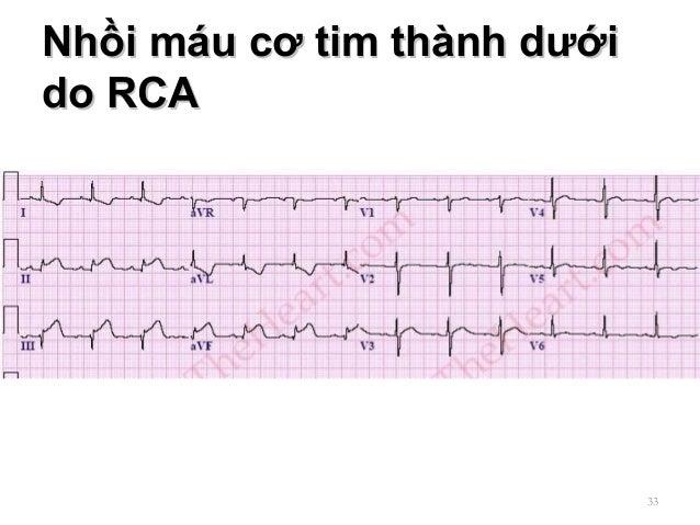 Nhồi máu cơ tim thành dướiNhồi máu cơ tim thành dưới do RCAdo RCA 33