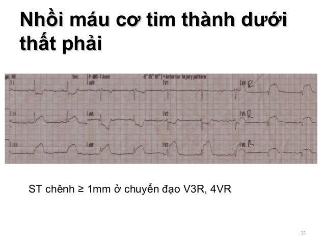 Nhồi máu cơ tim thành dướiNhồi máu cơ tim thành dưới thất phảithất phải 35 ST chênh ≥ 1mm ở chuyển đạo V3R, 4VR