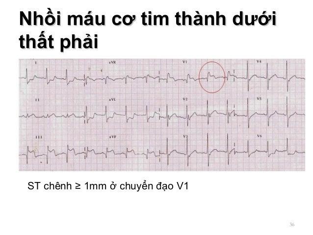 Nhồi máu cơ tim thành dướiNhồi máu cơ tim thành dưới thất phảithất phải 36 ST chênh ≥ 1mm ở chuyển đạo V1