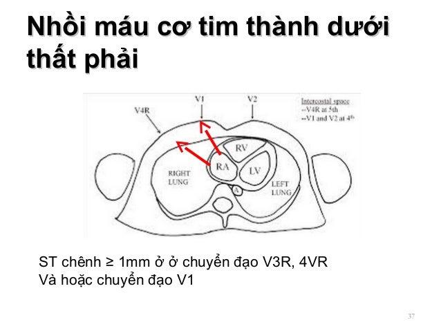 Nhồi máu cơ tim thành dướiNhồi máu cơ tim thành dưới thất phảithất phải 37 ST chênh ≥ 1mm ở ở chuyển đạo V3R, 4VR Và hoặc ...