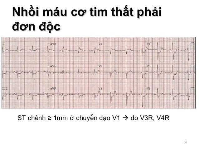 Nhồi máu cơ tim thất phảiNhồi máu cơ tim thất phải đơn độcđơn độc 38 ST chênh ≥ 1mm ở chuyển đạo V1  đo V3R, V4R