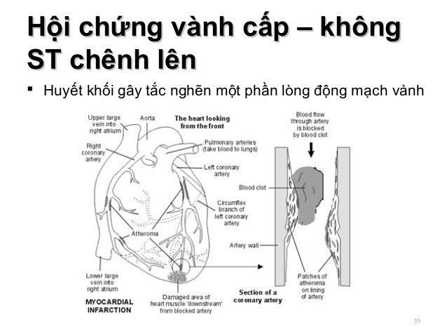 Hội chứng vành cấp – khôngHội chứng vành cấp – không ST chênh lênST chênh lên  Huyết khối gây tắc nghẽn một phần lòng độn...