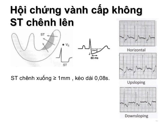 Hội chứng vành cấp khôngHội chứng vành cấp không ST chênh lênST chênh lên 40 ST chênh xuống ≥ 1mm , kéo dài 0,08s.