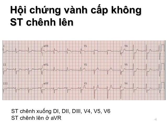 Hội chứng vành cấp khôngHội chứng vành cấp không ST chênh lênST chênh lên 41 ST chênh xuống DI, DII, DIII, V4, V5, V6 ST c...