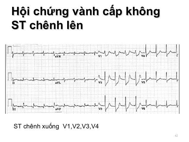 Hội chứng vành cấp khôngHội chứng vành cấp không ST chênh lênST chênh lên 42 ST chênh xuống V1,V2,V3,V4