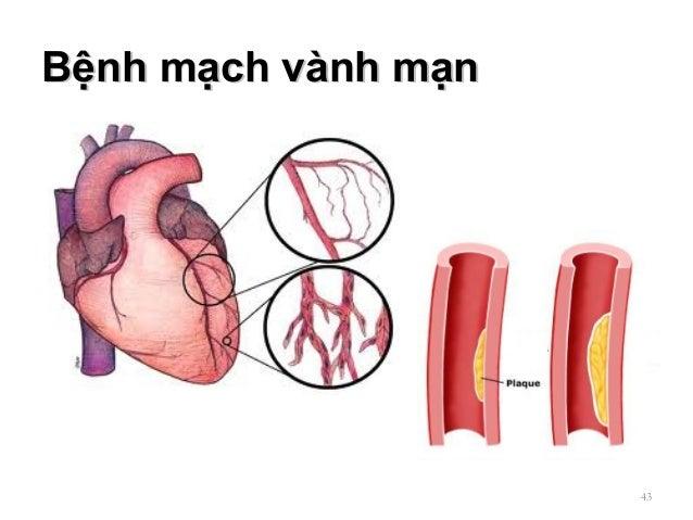 Bệnh mạch vành mạnBệnh mạch vành mạn 43