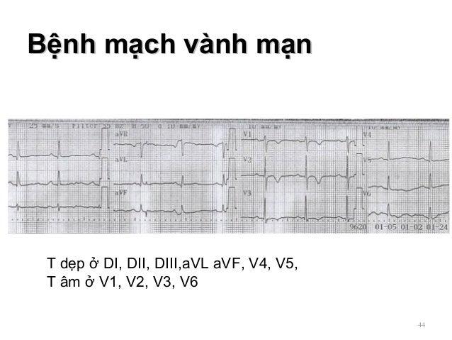 Bệnh mạch vành mạnBệnh mạch vành mạn 44 T dẹp ở DI, DII, DIII,aVL aVF, V4, V5, T âm ở V1, V2, V3, V6