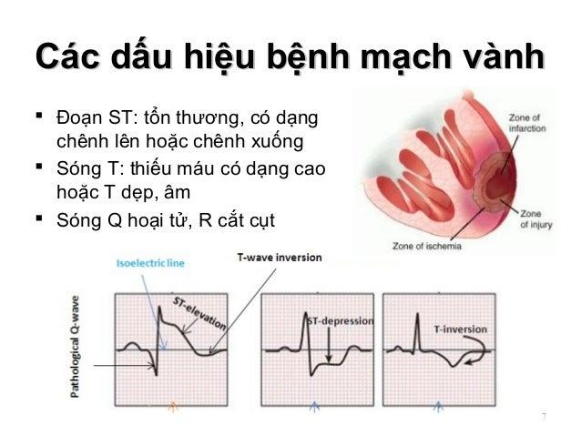 Các dấu hiệu bệnh mạch vànhCác dấu hiệu bệnh mạch vành  Đoạn ST: tổn thương, có dạng chênh lên hoặc chênh xuống  Sóng T:...