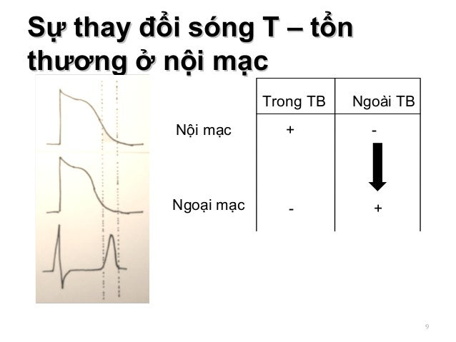 Sự thay đổi sóng T – tổnSự thay đổi sóng T – tổn thương ở nội mạcthương ở nội mạc 9 Nội mạc Ngoại mạc Trong TB Ngoài TB + ...