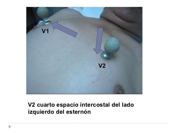 Ecg ceduc for Cuarto espacio intercostal