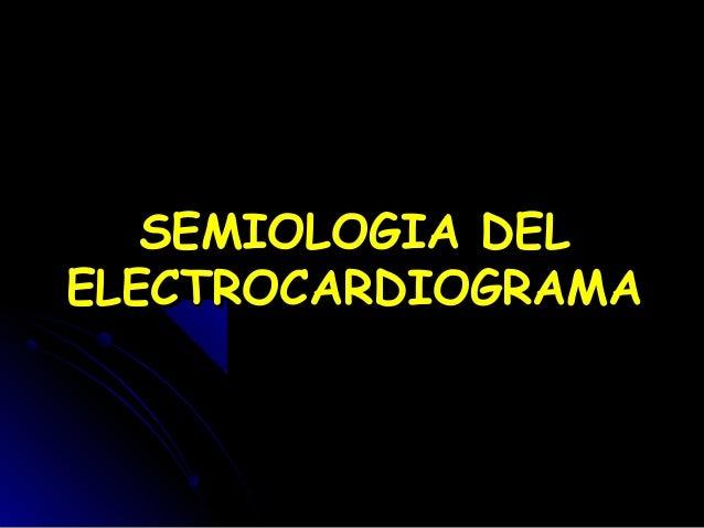 SEMIOLOGIA DELELECTROCARDIOGRAMA