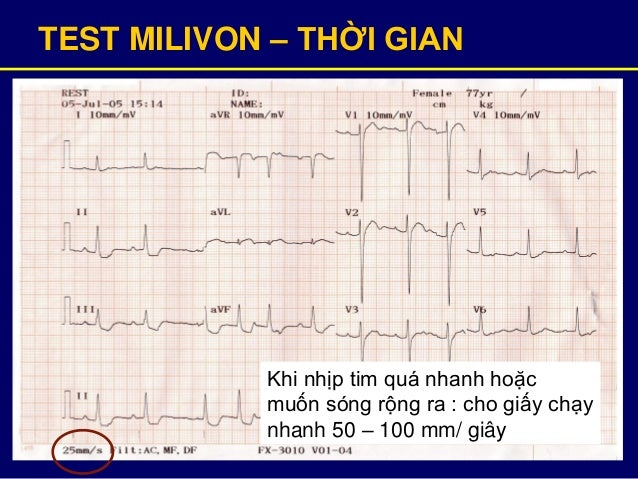 TEST MILIVON – THỜI GIAN Khi nhịp tim quá nhanh hoặc muốn sóng rộng ra : cho giấy chạy nhanh 50 – 100 mm/ giây