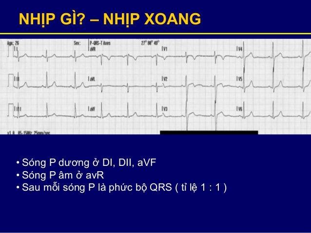 NHỊP GÌ? – NHỊP XOANG • Sóng P dương ở DI, DII, aVF • Sóng P âm ở avR • Sau mỗi sóng P là phức bộ QRS ( tỉ lệ 1 : 1 )