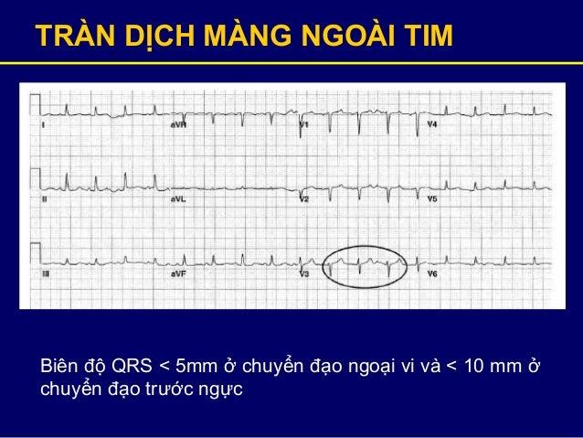 TRÀN DỊCH MÀNG NGOÀI TIM Biên độ QRS < 5mm ở chuyển đạo ngoại vi và < 10 mm ở chuyển đạo trước ngực