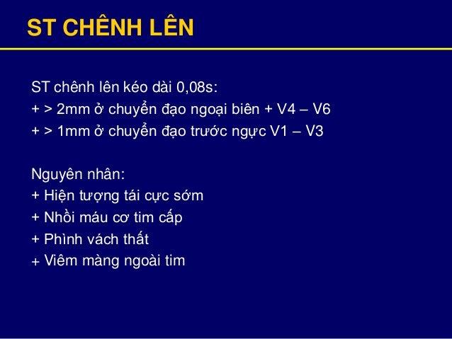 ST CHÊNH LÊN ST chênh lên kéo dài 0,08s: + > 2mm ở chuyển đạo ngoại biên + V4 – V6 + > 1mm ở chuyển đạo trước ngực V1 – V3...